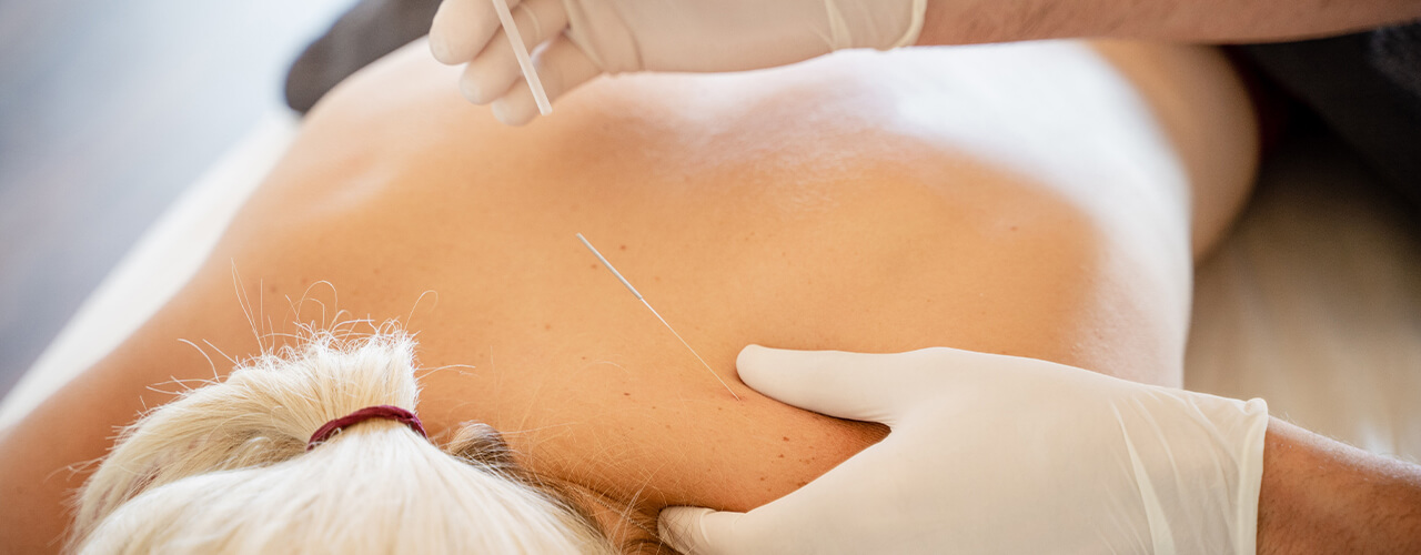 Dry Needling Therapy Treatment Johnson City, TN
